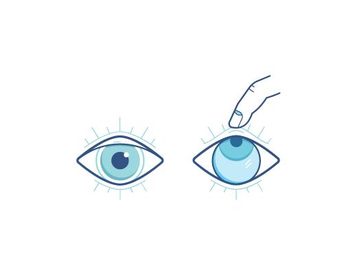 Ojo mirando hacia arriba para sacarse lente de contacto