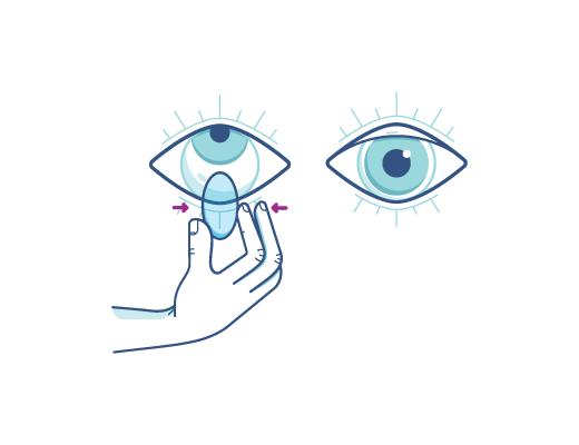 Apretando suavemente el lente de contacto para sacárselo