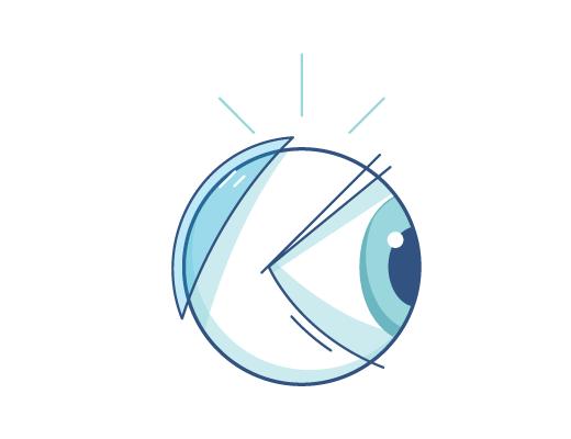 Lentes de contacto detras de un ojo